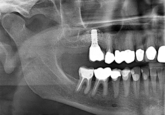 The x-ray check shows a largely homogeneous peri-implant hard tissue structure